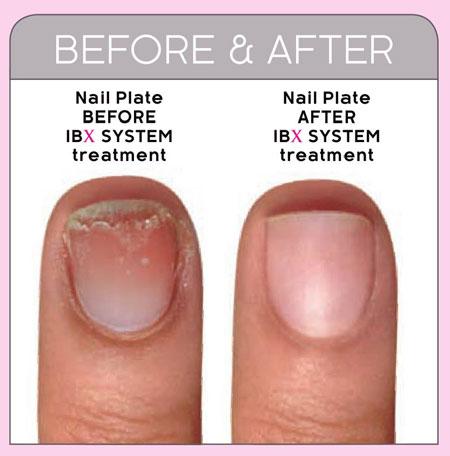 Укрепление и восстановление ногтей